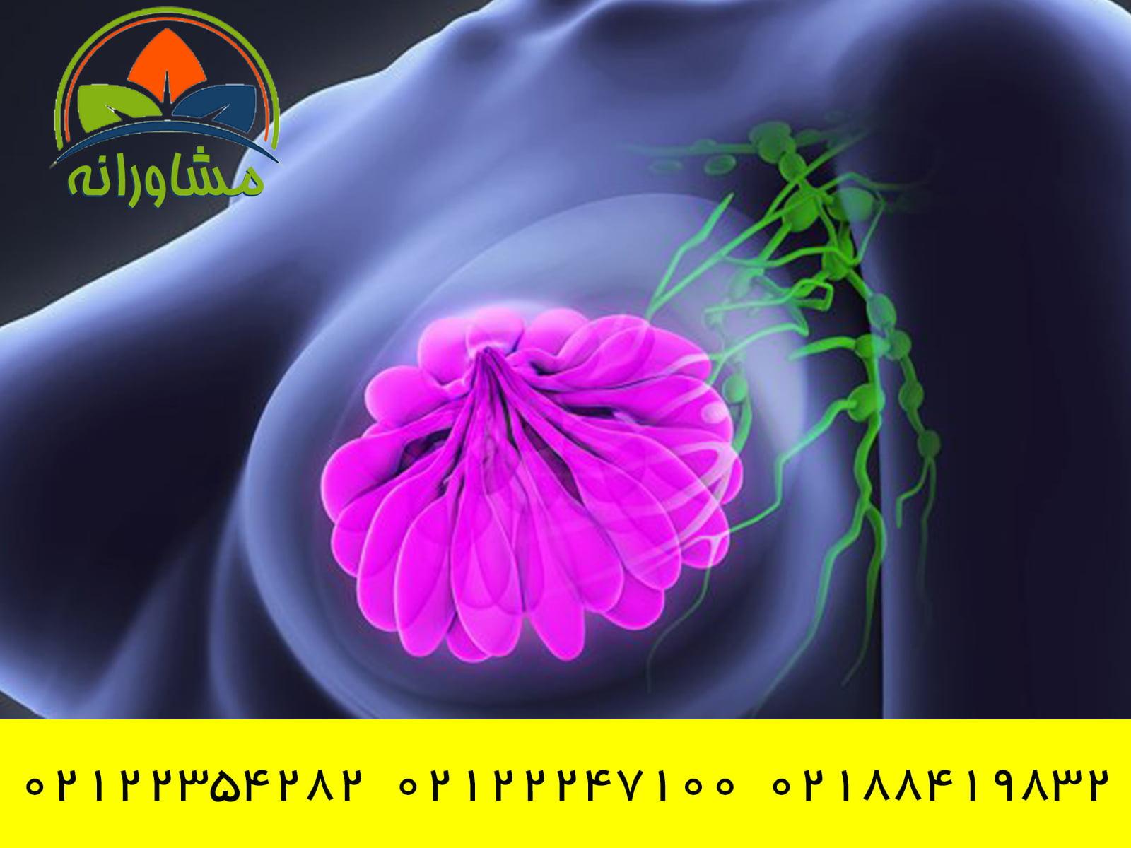 اختلالات مرتبط با سرطان سینه مشاورانه