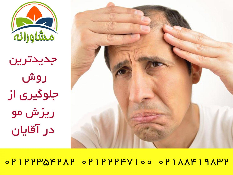 درمان شایع ترین نوع ریزش مو در مردان
