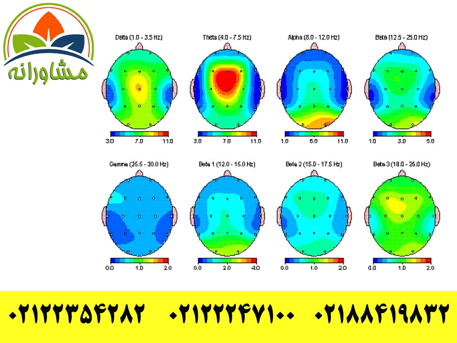 نقشه برداری مغزی