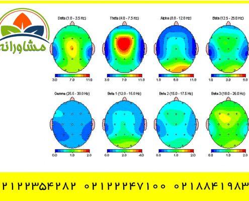 نقشه برداری مغزی غرب تهران شماره تماس بهترین مراکز